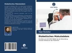 Buchcover von Diabetisches Makulaödem
