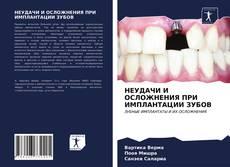 Bookcover of НЕУДАЧИ И ОСЛОЖНЕНИЯ ПРИ ИМПЛАНТАЦИИ ЗУБОВ