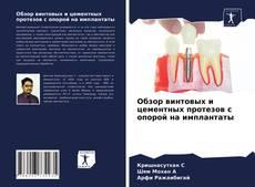 Обзор винтовых и цементных протезов с опорой на имплантаты kitap kapağı