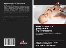 Обложка Associazione tra ipospadia e criptorchidismo