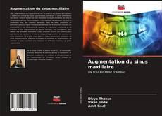 Augmentation du sinus maxillaire kitap kapağı