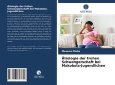 Bookcover of Ätiologie der frühen Schwangerschaft bei Makobola-Jugendlichen