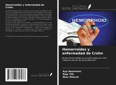 Capa do livro de Hemorroides y enfermedad de Crohn