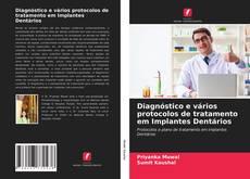 Portada del libro de Diagnóstico e vários protocolos de tratamento em Implantes Dentários