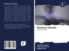 Buchcover von Болезнь Такаясу