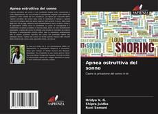 Buchcover von Apnea ostruttiva del sonno