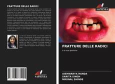 Bookcover of FRATTURE DELLE RADICI