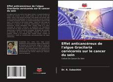 Effet anticancéreux de l'algue Gracilaria cervicornis sur le cancer du sein kitap kapağı