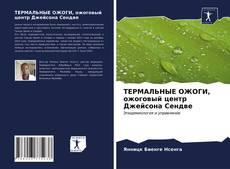 Buchcover von ТЕРМАЛЬНЫЕ ОЖОГИ, ожоговый центр Джейсона Сендве