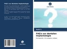 Bookcover of FAQ's zur dentalen Implantologie