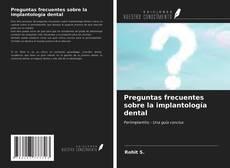 Portada del libro de Preguntas frecuentes sobre la implantología dental