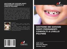 Couverture de GESTIONE DEI GIOVANI DENTI PERMANENTI COINVOLTI A LIVELLO PULPARE