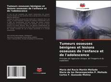 Capa do livro de Tumeurs osseuses bénignes et lésions osseuses de l'enfance et de l'adolescence