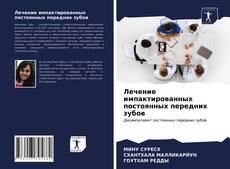 Portada del libro de Лечение импактированных постоянных передних зубов