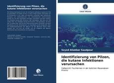 Bookcover of Identifizierung von Pilzen, die kutane Infektionen verursachen
