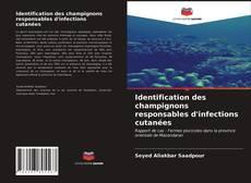 Bookcover of Identification des champignons responsables d'infections cutanées