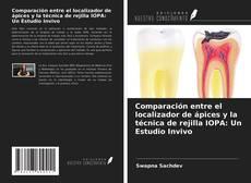 Bookcover of Comparación entre el localizador de ápices y la técnica de rejilla IOPA: Un Estudio Invivo