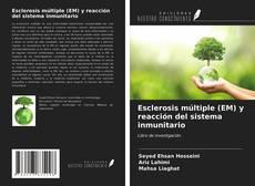Couverture de Esclerosis múltiple (EM) y reacción del sistema inmunitario