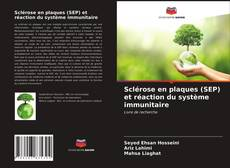 Bookcover of Sclérose en plaques (SEP) et réaction du système immunitaire