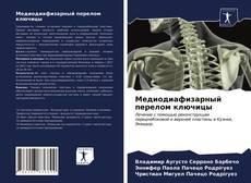 Bookcover of Медиодиафизарный перелом ключицы