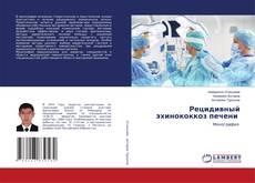Bookcover of Рецидивный эхинококкоз печени