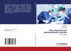 Bookcover of Постпротезные вентральные грыжи