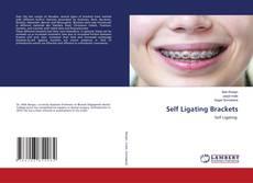Bookcover of Self Ligating Brackets