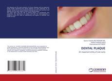 Bookcover of DENTAL PLAQUE
