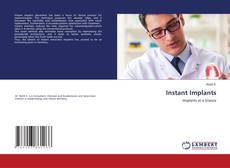 Bookcover of Instant Implants