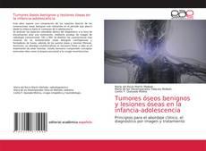 Обложка Tumores óseos benignos y lesiones óseas en la infancia-adolescencia