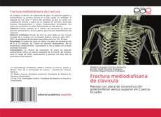 Обложка Fractura mediodiafisaria de clavícula