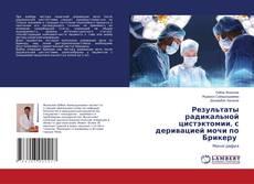 Bookcover of Результаты радикальной цистэктомии, с деривацией мочи по Брикеру