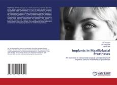 Bookcover of Implants in Maxillofacial Prostheses