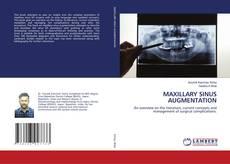 Bookcover of MAXILLARY SINUS AUGMENTATION