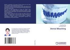 Bookcover of Dental Bleaching