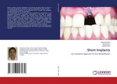 Bookcover of Short Implants
