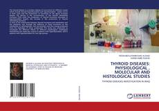 Couverture de THYROID DISEASES: PHYSIOLOGICAL , MOLECULAR AND HISTOLOGICAL STUDIES