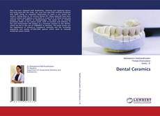 Bookcover of Dental Ceramics