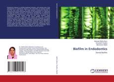 Bookcover of Biofilm in Endodontics