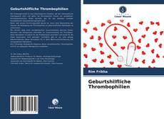 Bookcover of Geburtshilfliche Thrombophilien