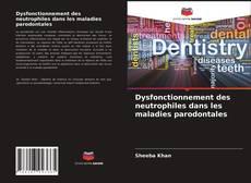 Bookcover of Dysfonctionnement des neutrophiles dans les maladies parodontales