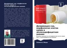 Bookcover of Депривация сна, морфология клеток крови и железодефицитная анемия
