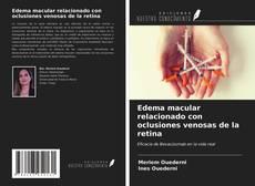 Buchcover von Edema macular relacionado con oclusiones venosas de la retina