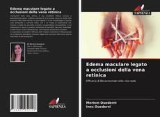 Buchcover von Edema maculare legato a occlusioni della vena retinica
