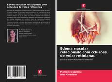 Buchcover von Edema macular relacionado com oclusões de veias retinianas