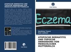 ATOPISCHE DERMATITIS UND TOPISCHE ANWENDUNG VON MENSCHLICHER MUTTERMILCH的封面