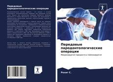 Bookcover of Передовые пародонтологические операции