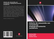 Bookcover of Infarto do miocárdio em coronárias angiograficamente saudáveis