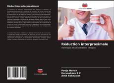 Buchcover von Réduction interproximale