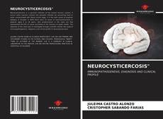 """Bookcover of NEUROCYSTICERCOSIS"""""""